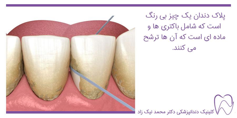 پلاک دندان چیست
