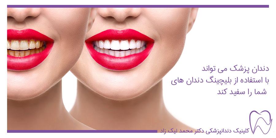 وایتنینگ دندان