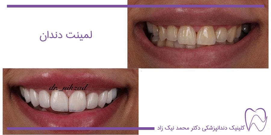 لمینت سرامیکی دندان چیست