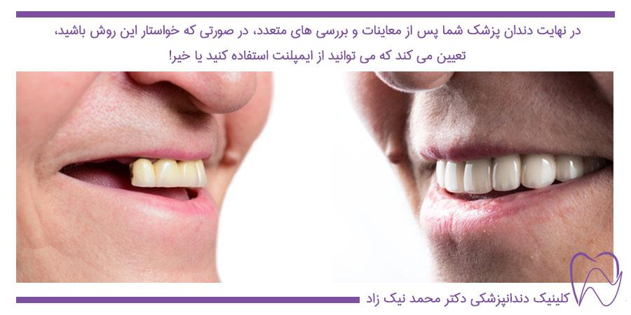 کاندیدای مناسب ایمپلنت دندان برای جایگزین کردن دندان از دست رفته