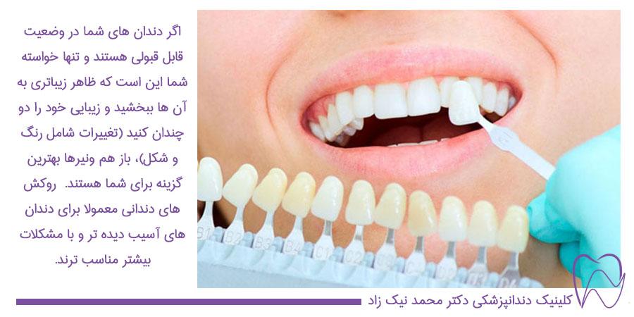 برای داشتن لبخندی زیبا ونیرها بهترین گزینه برای شما هستند
