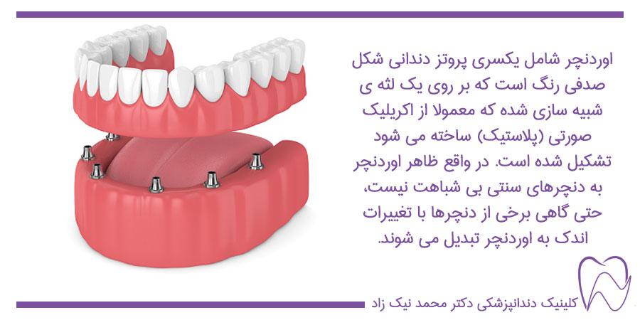 اوردنچر دندان چیست