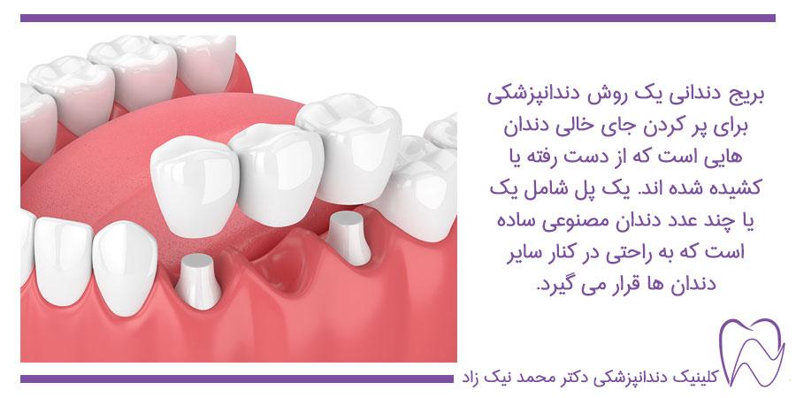 بریج دندان راهکاری برای جایگزینی دندان های از دست رفته