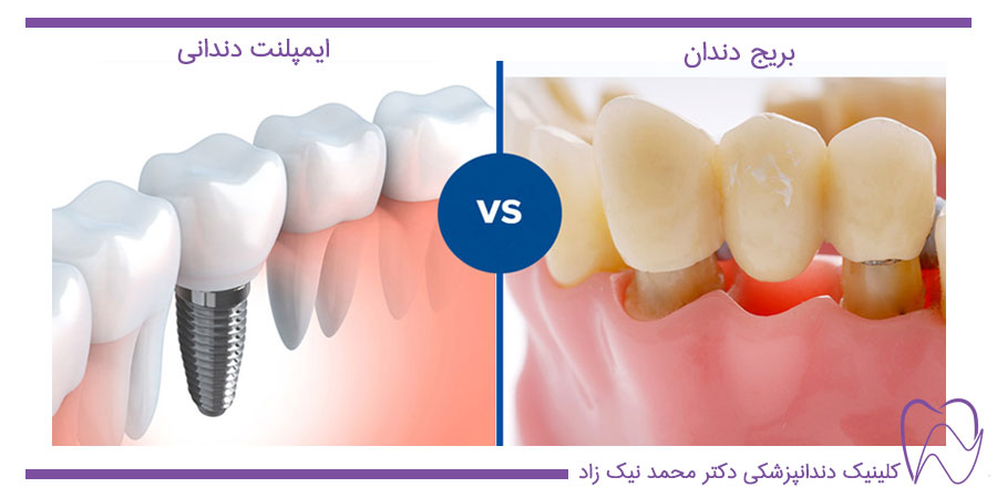 مقایسه ایمپلنت و بریج دندان