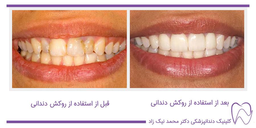 فواید روکش دندان