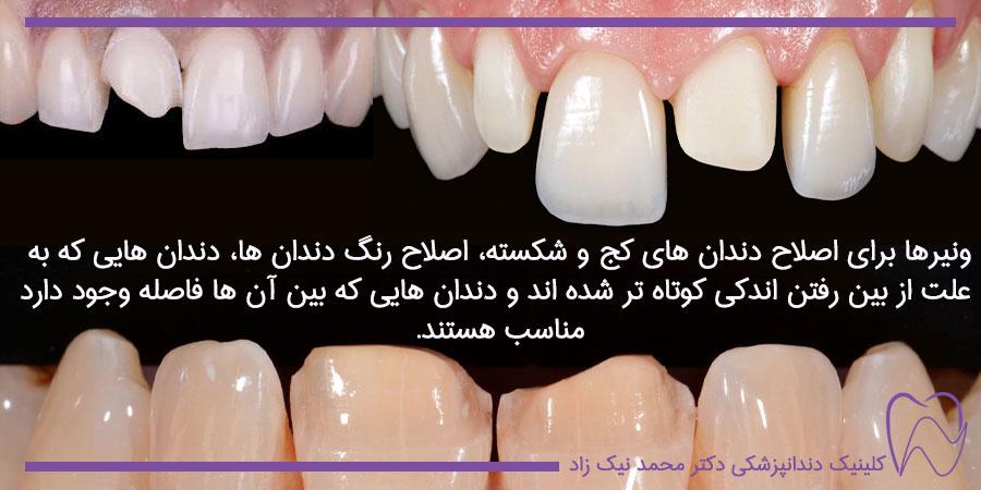 مزایای ونیر دندان