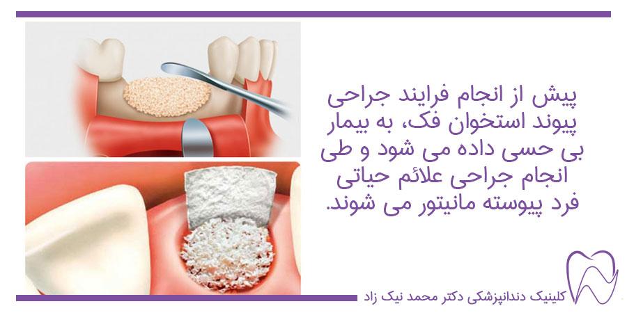 فرایند جراحی پیوند استخوان فک