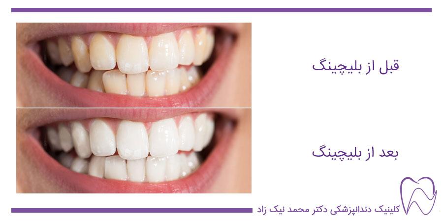 قبل و بعد از سفید کردن دندان ها