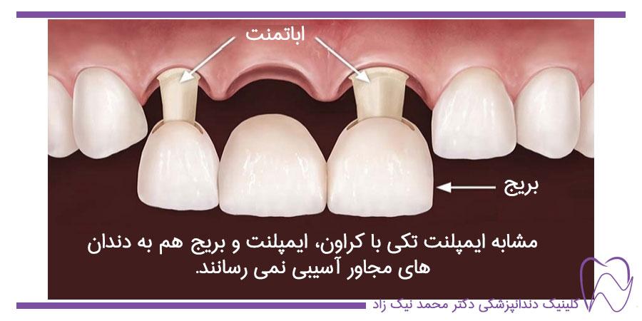 بریج یا پل دندانی به جای استفاده از ایمپلنت تکی