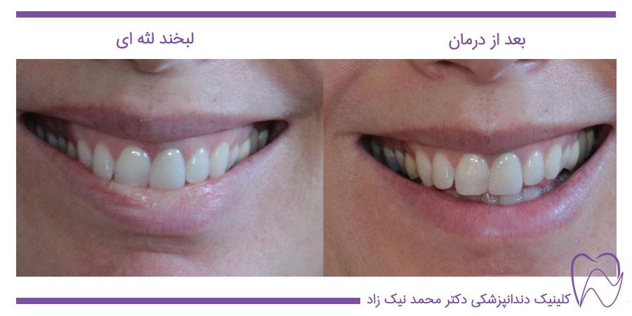 قبل و بعد از درمان لبخند لثه ای و تغییرات در زیبایی