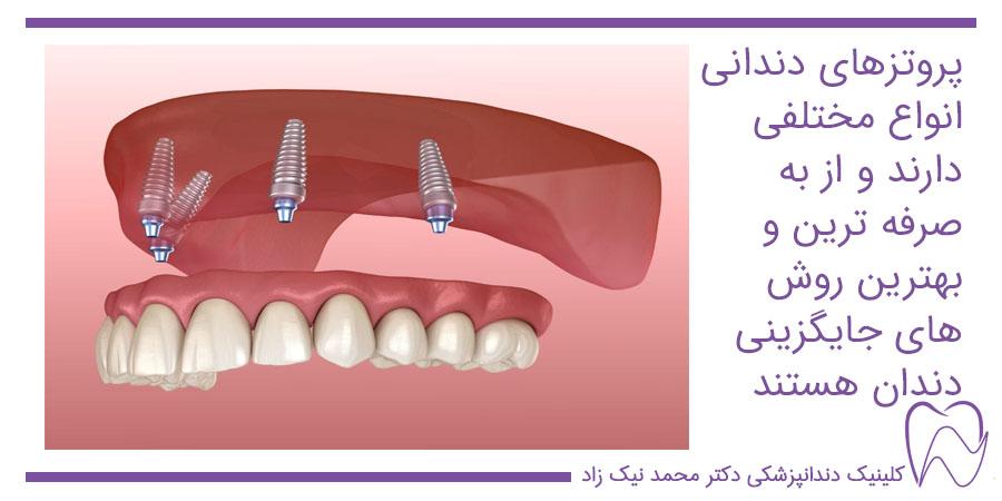 پروتز دندان انواع مختلفی دارد