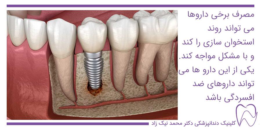 عواملی که باعث شکست ایمپلنت دندان می شود