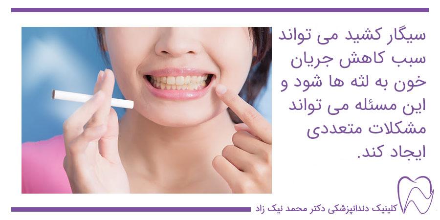 سیگار کشیدن و لثه ها هنگام ایمپلنتسیگار کشیدن و لثه ها هنگام ایمپلنت