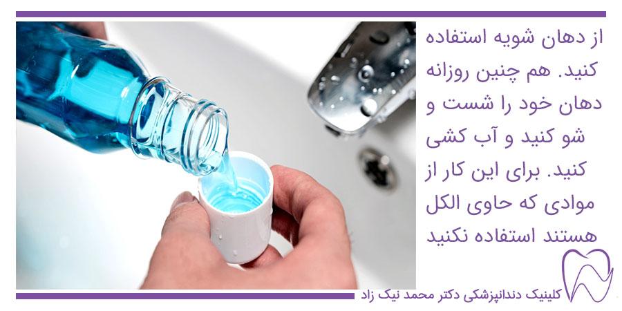 برای مراقب بیشتر بعد از ایمپلنت از دهان شویه استفاده کنید