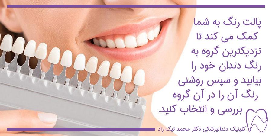 کاتالوگ رنگ کامپوزیت دندان