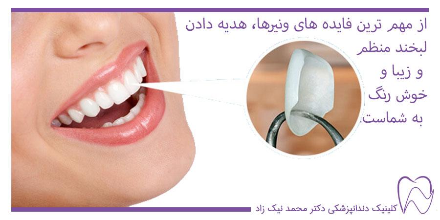 فواید ونیر دندان