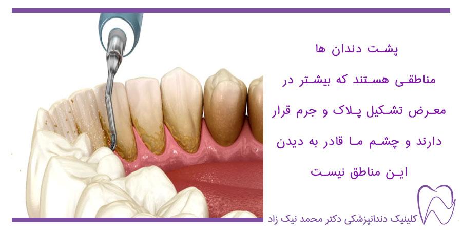 جرم گیری پشت دندان هاتوسط دندان پزشک