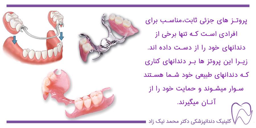 پروتزهای ثابت دندان