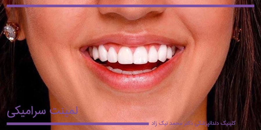 ونیر سرامیکی دندان