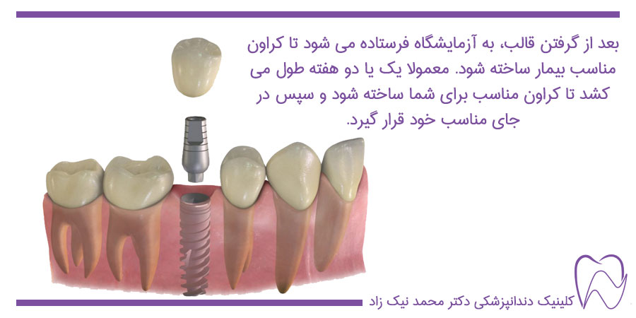 قرارگیری کراون مناسب بیمار روی پایه امپلنت بعد از قالب گیری