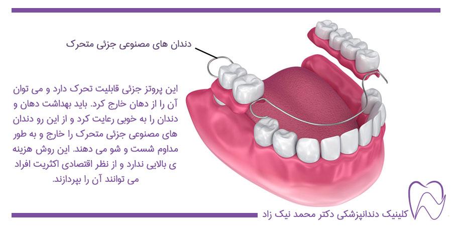 دندان های مصنوعی جزئی متحرک