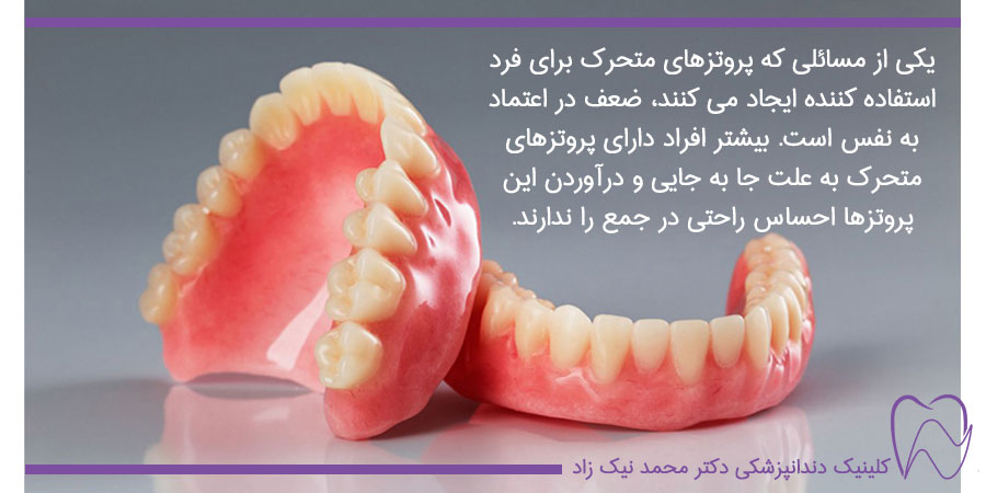 دست دندان های مصنوعی کامل