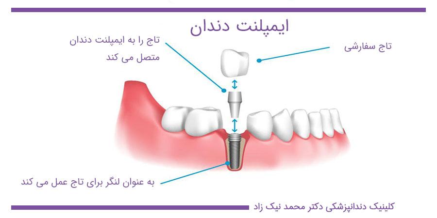 توضیحات اتصال و کاشت ایمپلنت دندان