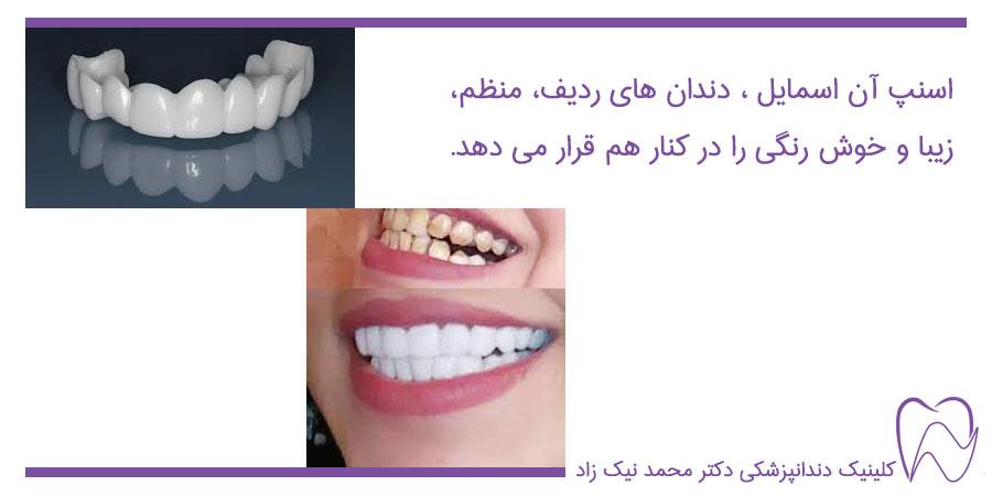 دندان های زیبا و منظم