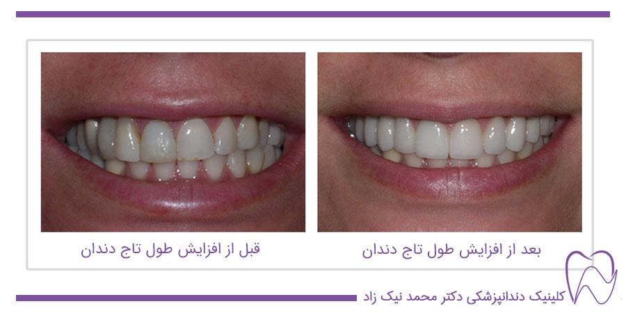 جراحی و ادامه ی روند طرح اصلاح لبخند با افزایش طول تاج دندان