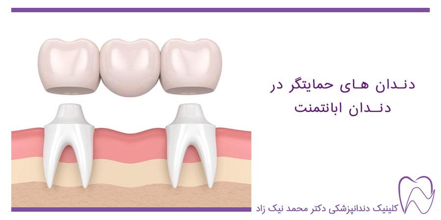 دندانهای حمایتگر در ابانتمنت دندان