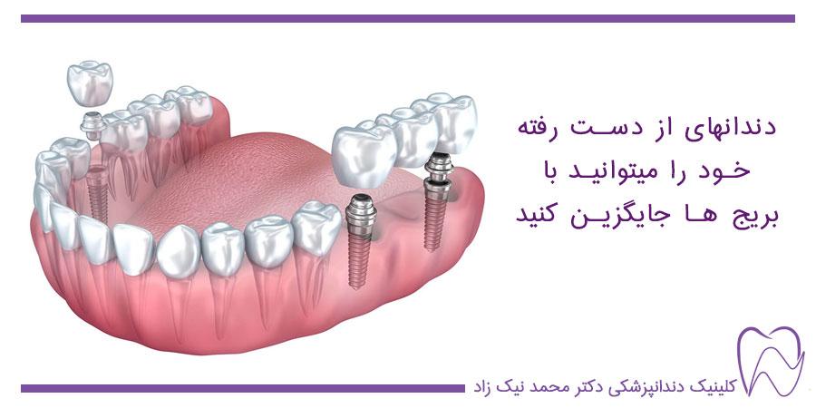 بریج ها بهترین جایگزین دندانهای از دست رفته