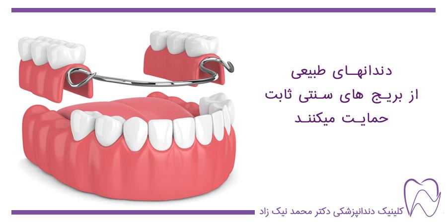 حمایت دندانهای اصلی از بریج سنتی ثابت