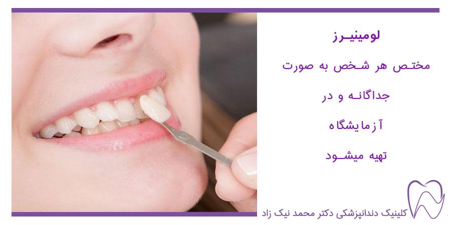 لومینیرز دندان های جلو