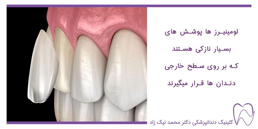 لومینیرز بر روی سطح خارجی دندان