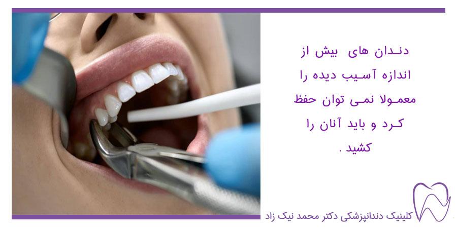 کشیدن دندان- ذندان های اسیب دیده