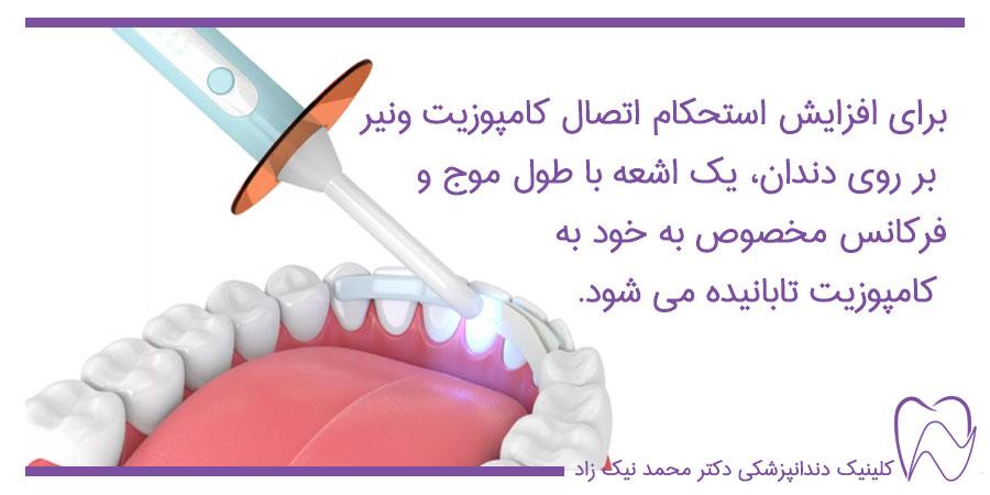اتصال کامپوزیت ونیر بر روی دندان