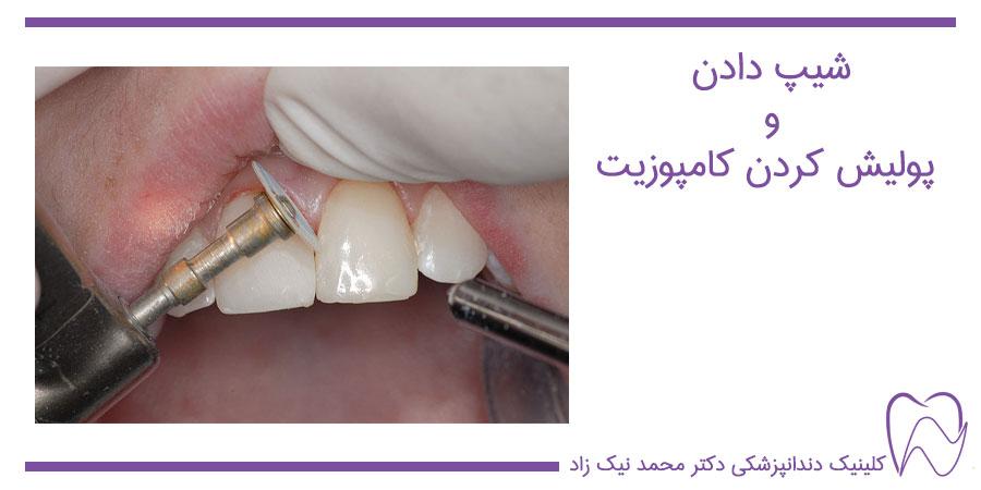 پالیش کامپوزیت دندان
