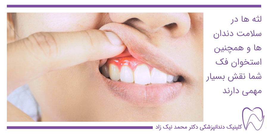 نقش لثه ها در سلامت دندان