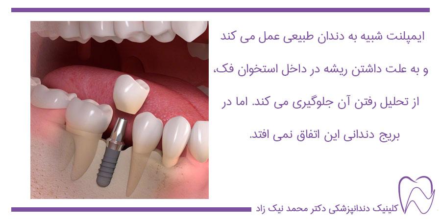 ایمپلنت و بریج دندان