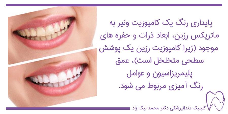 رنگ کامپوزیت ونیر دندان