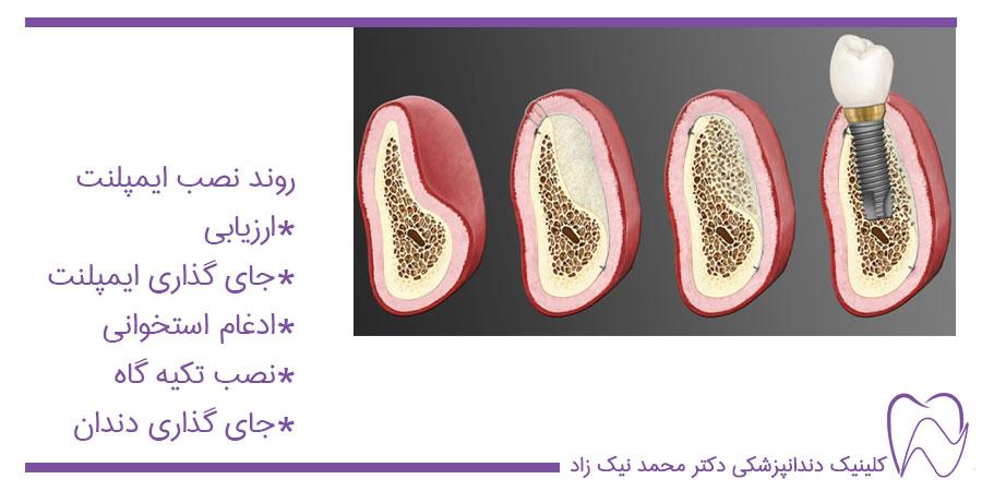 مراحل نصب ایمپلنت دندان