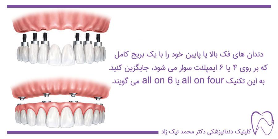 ایمپلنت تمام دندان