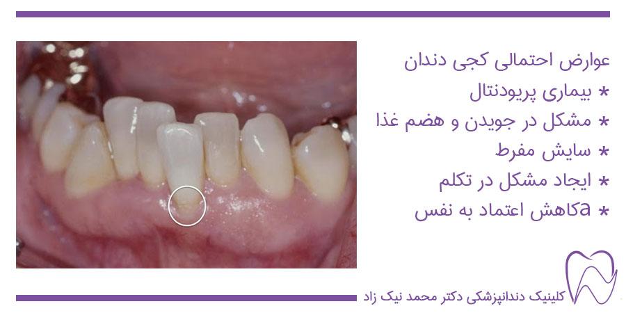 علت کجی دندان