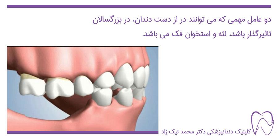 عوارض از دست دادن دندان