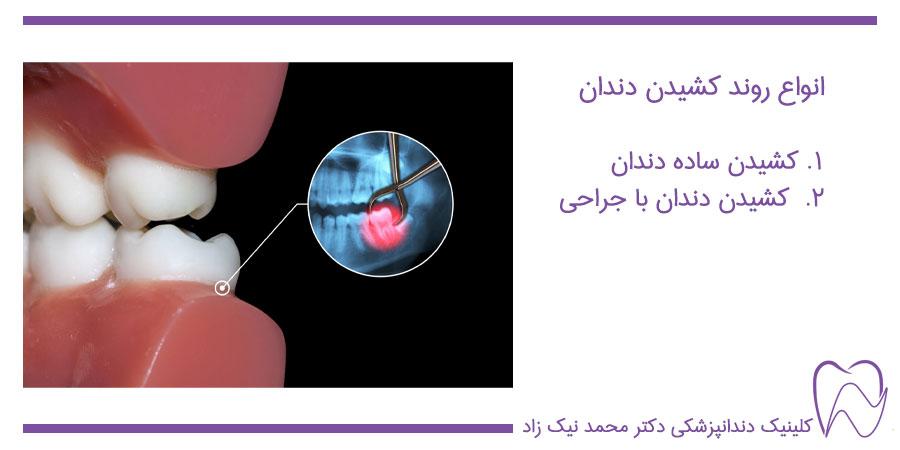 روش کشیدن دندان