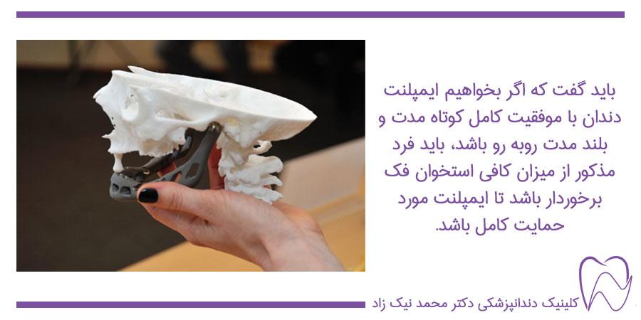 نکات مهم در ایمپلنت دندان