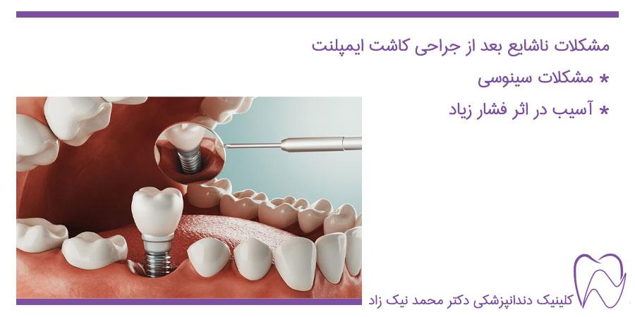 عوارض کاشت ایمپلنت دندان