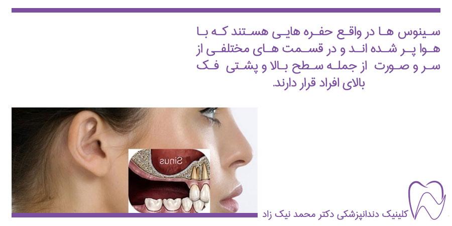سینوس دندان چیست