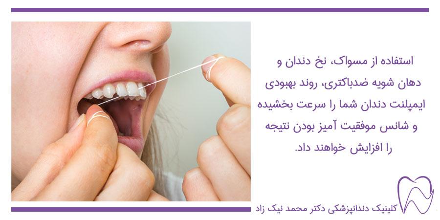 مراقبت ایمپلنت دندان
