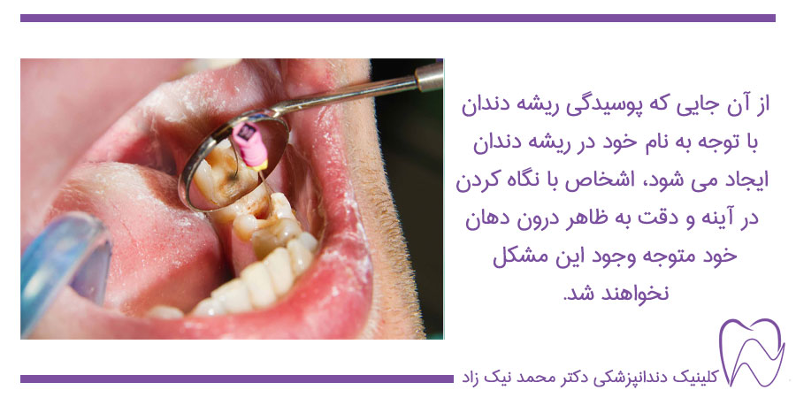 علائم پوسیدگی ریشه دندان
